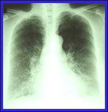 cancro_polmone