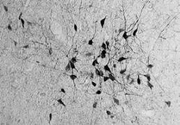 neurons_liten