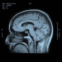 alzheimers_dental_study_rdax_500x500