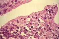 chlamydiatrachomatis