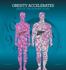 Obesity-liver