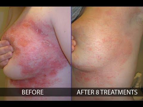 Olio di coronopo del mare a eczema al bambino