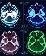 risonanza cranio