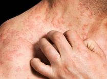 Adult-eczema