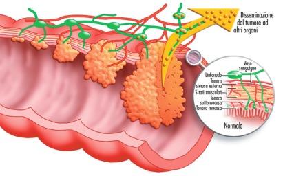 stadiazione-tumore-colon-retto1