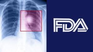 fda-lung