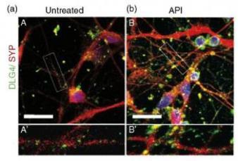 apigenin-treated-neurons