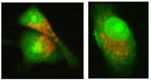 nisina-cancer-cells