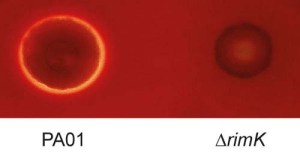 Blood lysis_9TlAfHL