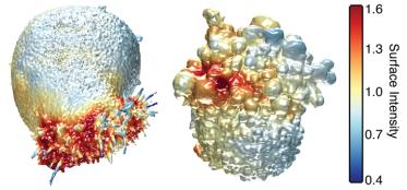 Cellule cancerose-3d