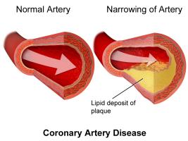 CoronaryArteryDisease