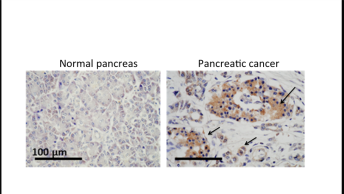 Pancreatic_cancer