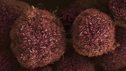 cell-pancreatic-cancer