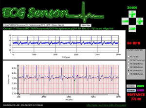 elettrocardiografi-indossabili
