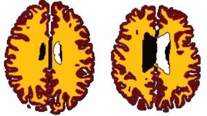Ronan-brain