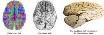 brain-map