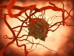 tumor-blood