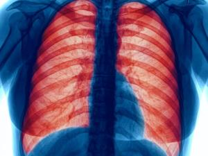 lungs-x-ray