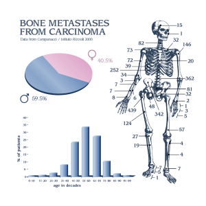 BoneMetastasesFromCarcinoma
