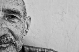 alzheimer-disease