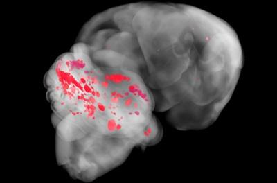 CCM-human-brain