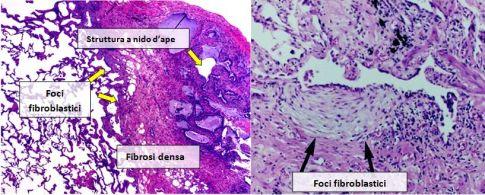 Fibrosi-idiopatica