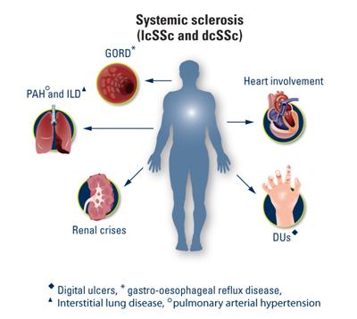Sclerosi-sistemica