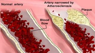 atherosclerosis-disease