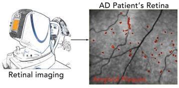 AD-retina