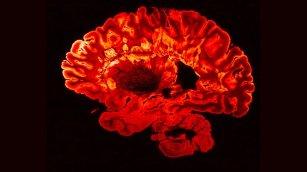 brain-MS