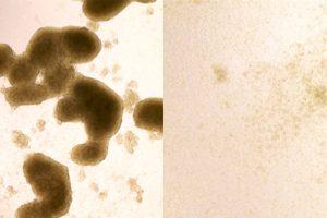Zika-glioblastoma
