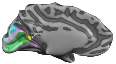 Brain_Prostriata
