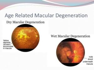 macular-degeneration-6-638