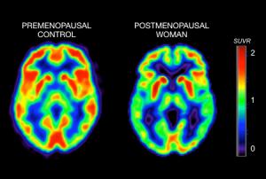 menopause-Alzheimer