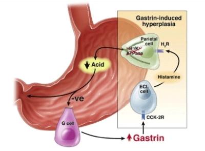 è la terapia protonica approvata dallFDA per il cancro alla prostata