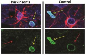 Astrociti-Parkinson
