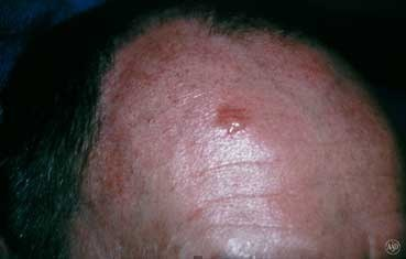 basal_cell_carcinoma