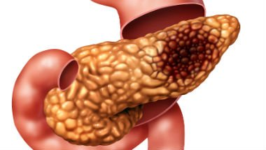 pancreas-cancer3