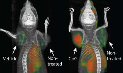 vaccine-cancer