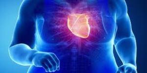 CVD-risk-obesity