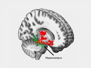 beta-amyloid-brain-regions