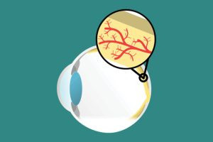 Micro-RNA