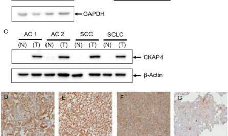 biomarker-lung-cancer