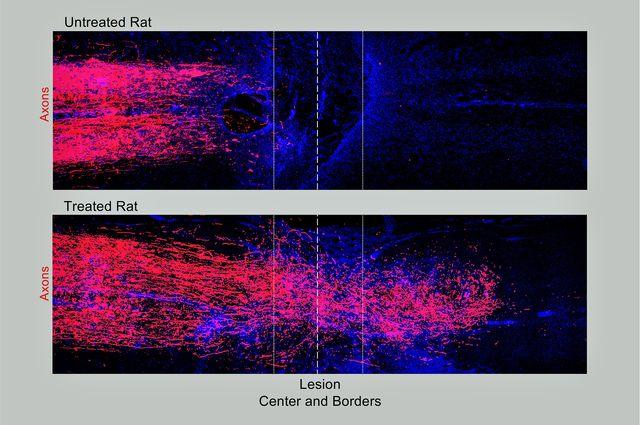 Rat+axons