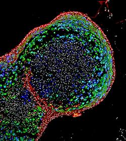human-esophageal-organoid