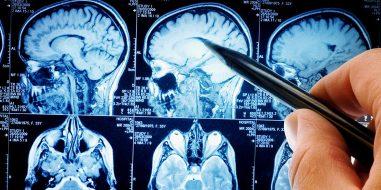 hjernemr