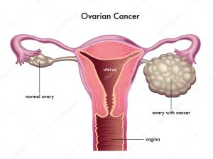 ovarian-cancer-scheme