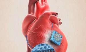 patch-cuore-infarto