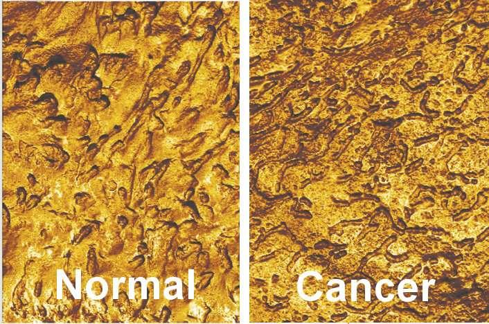 metodi di rilevazione per il cancro alla prostata
