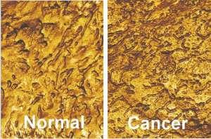 AFM-bladder-cancer